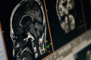 脳炎、脳症の症状と看護計画