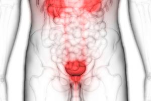 膀胱がん患者の看護計画
