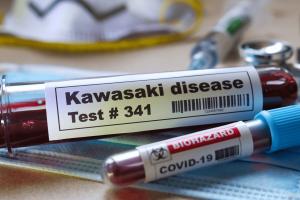 川崎病患者への看護について(症状・看護計画・注意点)