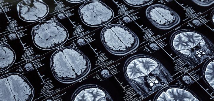 一過性脳虚血発作の看護計画