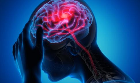 脳梗塞患者の看護(症状・注意点・看護計画)について