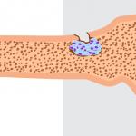 多発性骨髄腫患者の看護計画と症状・注意点