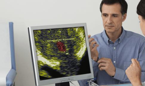 前立腺癌患者の看護計画