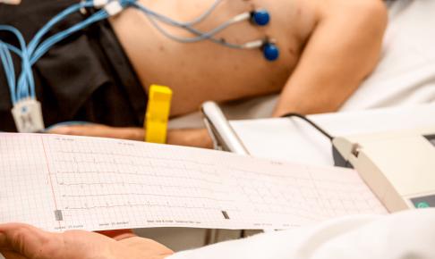 不整脈患者への看護(注意すべき症状・看護計画・注意点・スキル)について