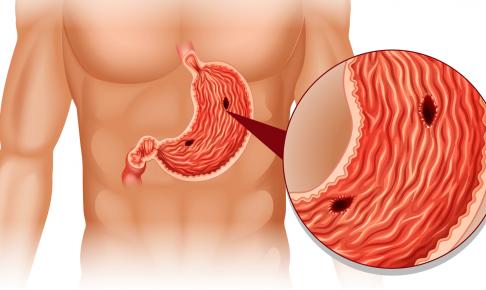胃潰瘍患者の看護(症状・看護計画・注意点)について