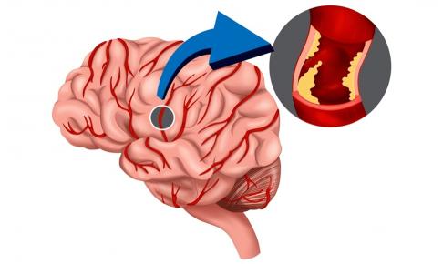 くも膜下出血患者の看護(注意する症状・看護計画)について