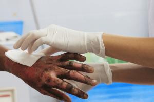 熱傷患者の看護(症状・評価方法・注意する期間・看護計画)について