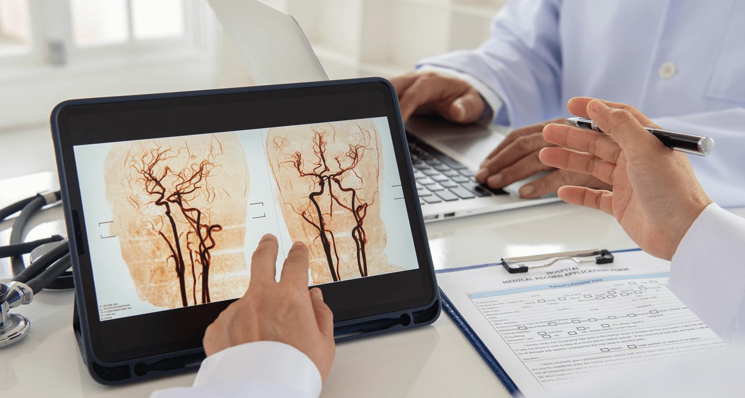 脳出血患者の看護(症状・治療法・看護計画)について