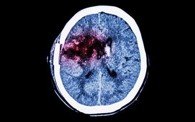 脳出血の患者の症状について