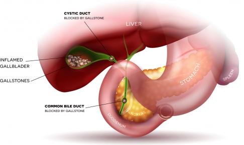 胆嚢炎の患者の看護(症状、看護計画、注意点、必要スキル)について