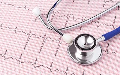 24時間持続の心電図の監視