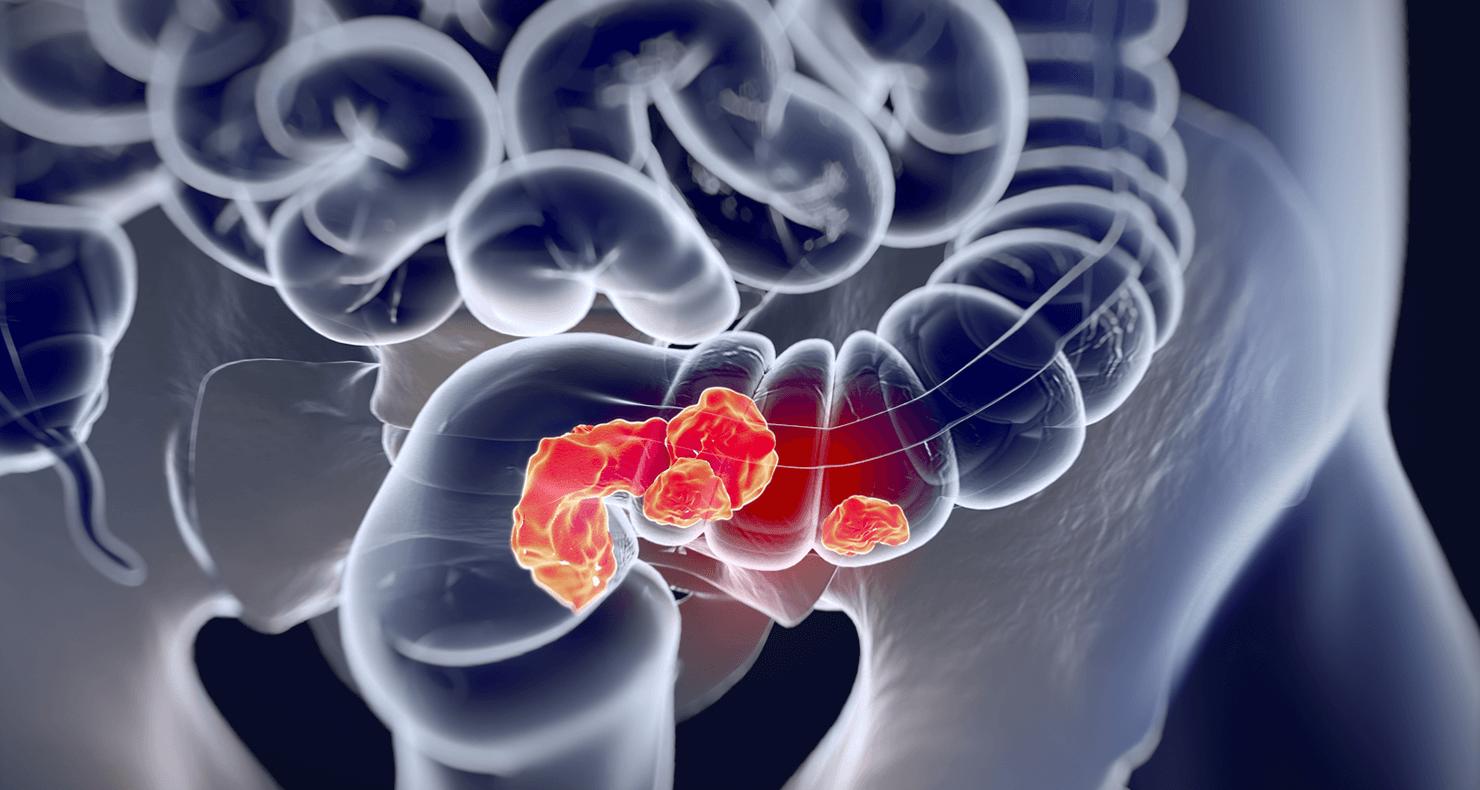 大腸がん患者の看護(症状・役割・看護計画・注意点)について