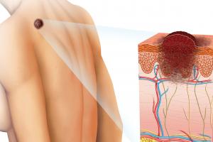 皮膚がん患者の看護と(基底細胞癌・有棘細胞癌・悪性黒色腫)看護計画