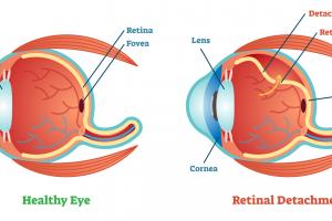 網膜剥離のオペ前~オペ後の看護について
